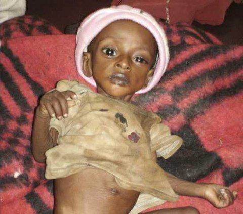 ETHIOPIA HUNGER CRR 5474378
